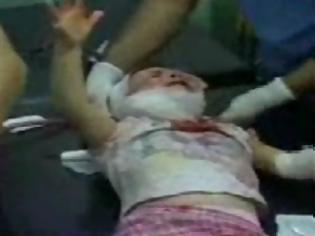 Φωτογραφία για Συρία: Συγκλονιστικό βίντεο, πατέρας προσπαθεί να σώσει το παιδί του